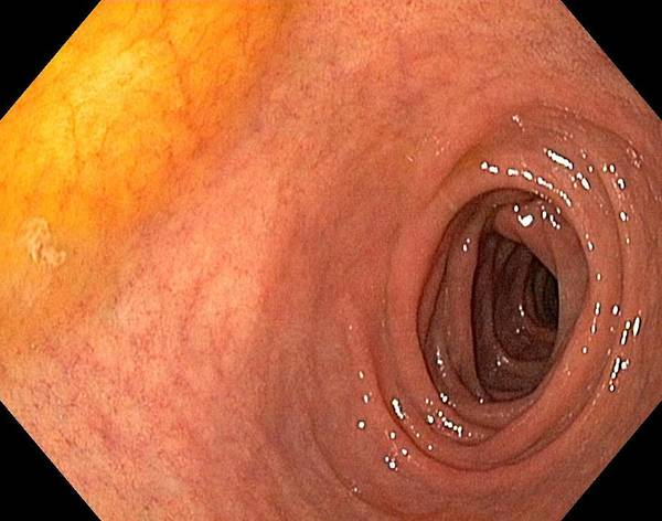 Endoscopic View Poster featuring the photograph Healthy Duodenum by Gastrolab
