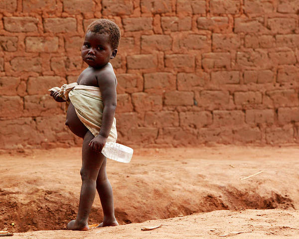 Kwashiorkor Poster featuring the photograph Malnourished Child by Mauro Fermariello