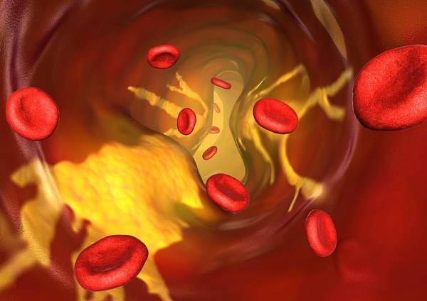 Red Blood Cell Poster featuring the photograph Narrowed Artery, Computer Artwork by David Mack