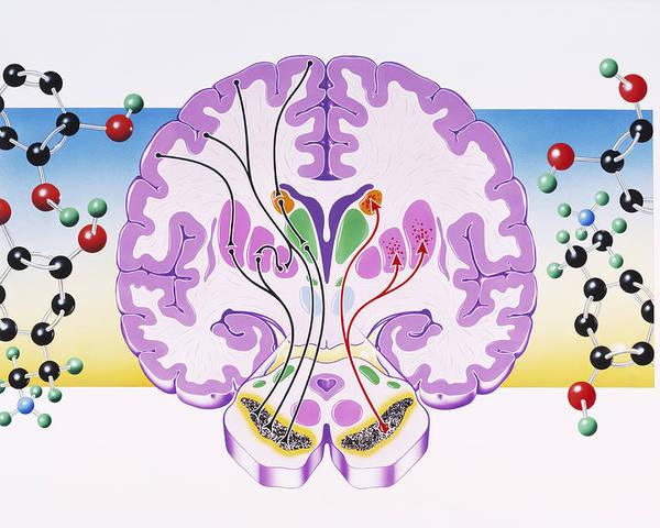 Parkinson's Disease Poster featuring the photograph Parkinson's Disease by John Bavosi