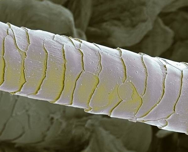 Eyelash Poster featuring the photograph Primate Eyelash, Sem by Steve Gschmeissner