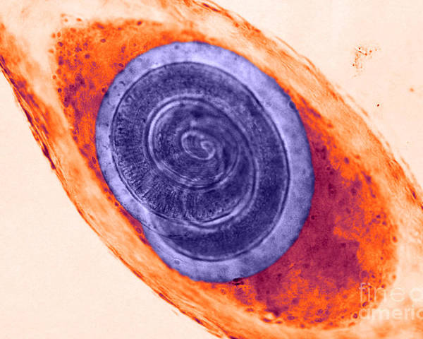 Biology Poster featuring the photograph Trichinella In Muscle Lm by Omikron