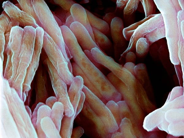Mycobacterium Bovis Poster featuring the photograph Tuberculosis Vaccine Bacteria, Sem by