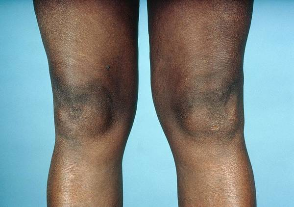 Arthritis Poster featuring the photograph View Of Knees Affected By Osteoarthritis by