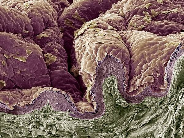 Skin Poster featuring the photograph Skin Tissue, Sem by Steve Gschmeissner