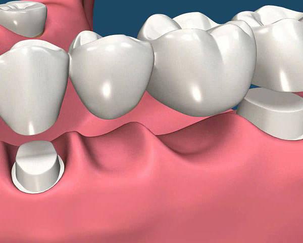 Dental Implants Santa Clara Poster featuring the digital art Restorations For Missing Teeth Implants, Dentures And Bridges by Rafael Chuapoco