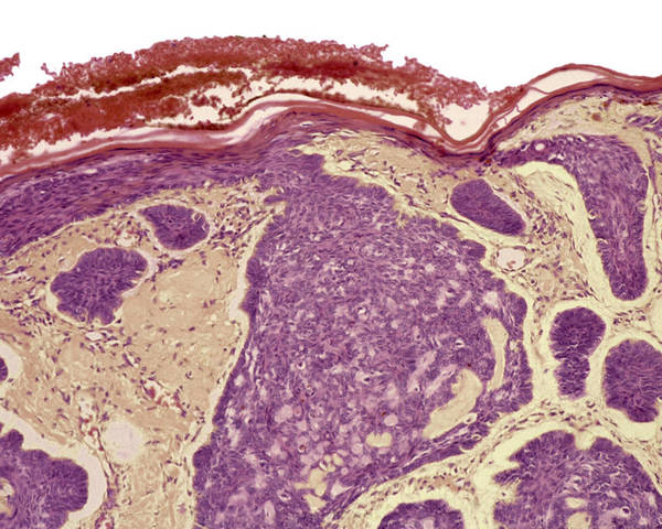 Rodent Ulcer Poster featuring the photograph Skin Cancer, Light Micrograph by Steve Gschmeissner
