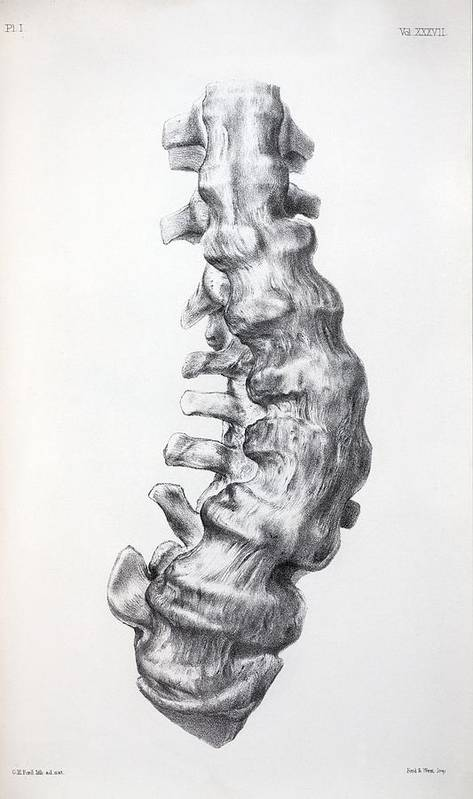 Arthritis Poster featuring the photograph 1852 Gideon Mantell's Fused Spine by Paul D Stewart