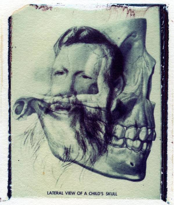 Polaroid Transfer Skull Anatomy Teeth Skeleton Beard Poster by Jane ...