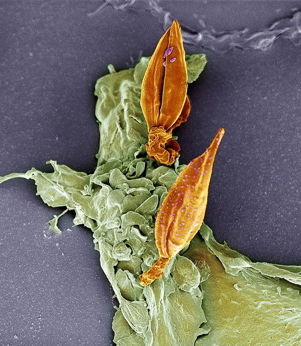 Macrophage Poster featuring the photograph Protozoan Infecting Macrophage, Sem by