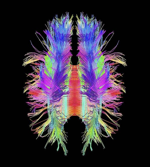 Brain Poster featuring the photograph White Matter Fibres And Brain, Artwork by Science Photo Library