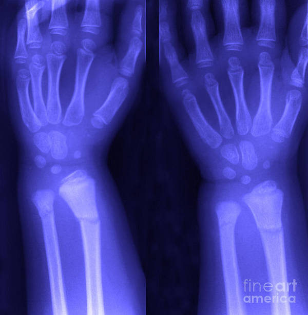 X-ray Poster featuring the photograph Broken Wrist by Ted Kinsman