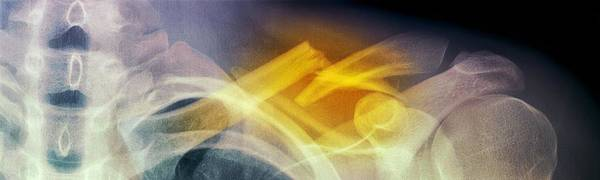 Bone Poster featuring the photograph Fractured Collar Bone, X-ray by Du Cane Medical Imaging Ltd