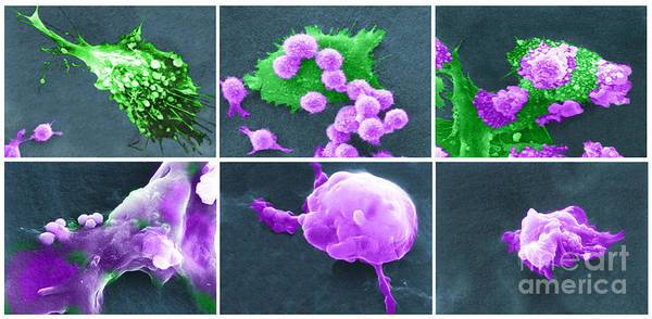 Scanning Electron Micrograph Poster featuring the photograph Cancer Cell Death Sequence, Sem by Science Source