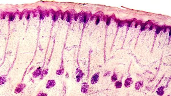 Human Poster featuring the photograph Skin Sweat Glands, Light Micrograph by Dr Keith Wheeler