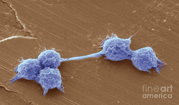 Scanning Electron Micrograph Poster featuring the photograph Water Biofilm With H. Vermiformis Cysts by Science Source
