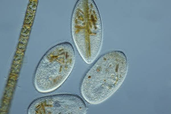 Animal Poster featuring the photograph Frontonia Protozoa, Light Micrograph by Frank Fox