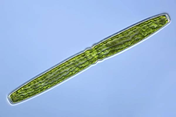 Algae Poster featuring the photograph Green Alga, Light Micrograph by Frank Fox