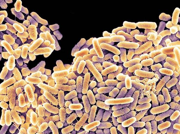 Salmonella Poster featuring the photograph Salmonella Bacteria, Sem by
