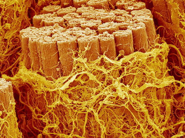 Trachealis Poster featuring the photograph Trachea Muscle, Sem by Susumu Nishinaga