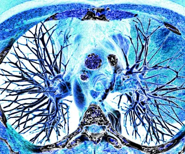 3-d Poster featuring the photograph Heart And Lungs, 3d Ct Scan by Pasieka