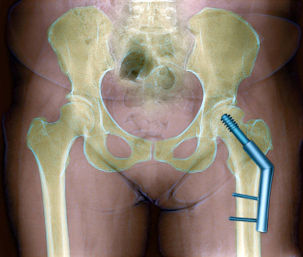 Ball And Socket Joint Poster featuring the photograph Fractured Femur by Du Cane Medical Imaging Ltd