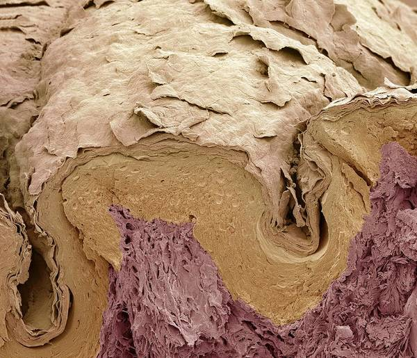 Scanning Electron Micrograph Poster featuring the photograph Finger Skin, Sem by Science Photo Library