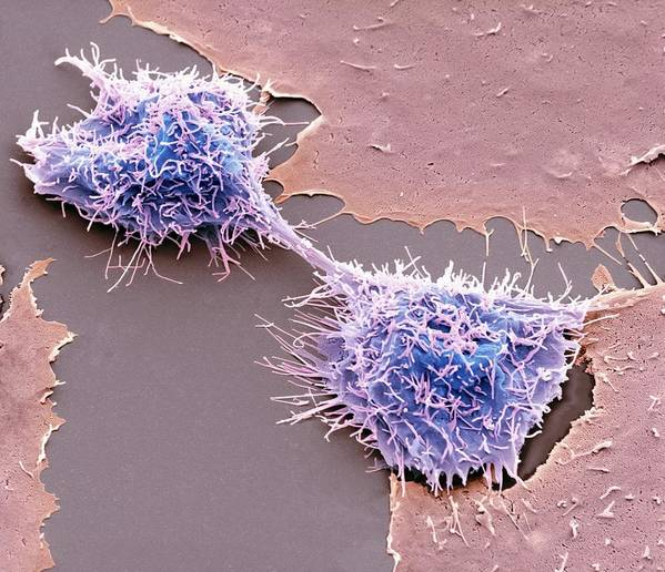 Hela Cell Poster featuring the photograph Dividing Hela Cells, Sem by Steve Gschmeissner