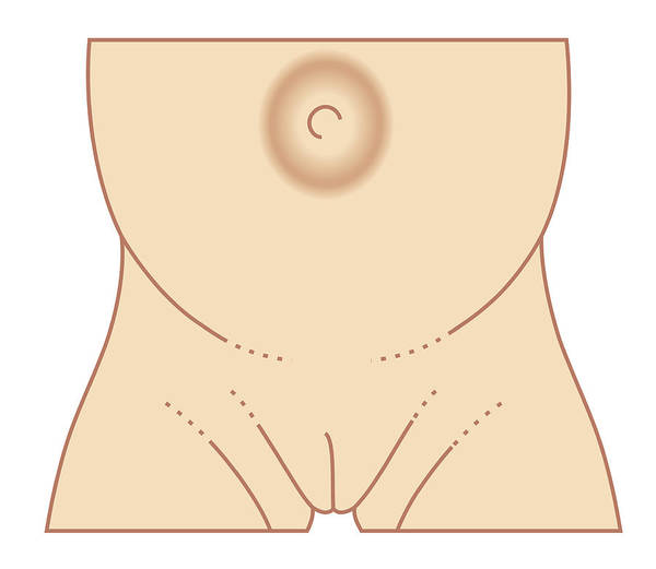 Biomedical Illustration Of Umbilical Hernia In Female Baby Poster
