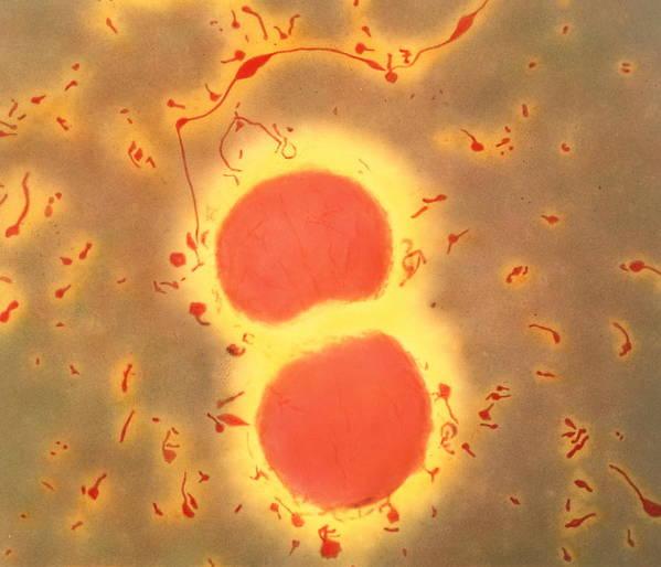 Neisseria Meningitidis Poster featuring the photograph Neisseria Meningitidis Bacteria by A. Dowsett, Health Protection Agency
