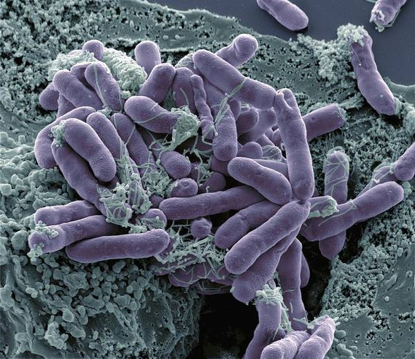 Escherichia Coli Poster featuring the photograph Bacterial Contamination, Sem by Steve Gschmeissner