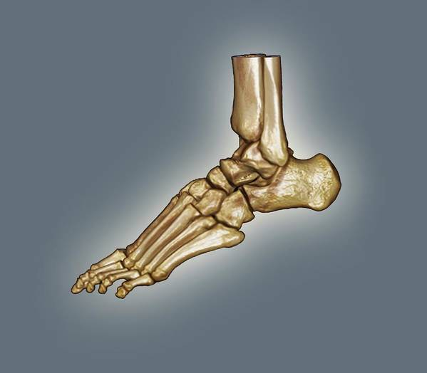 Ct Scan Poster featuring the photograph Normal Foot, 3d Ct Scan by Zephyr