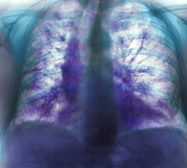 Fibrosing Alveolitis Poster featuring the photograph Fibrosing Alveolitis, X-ray by
