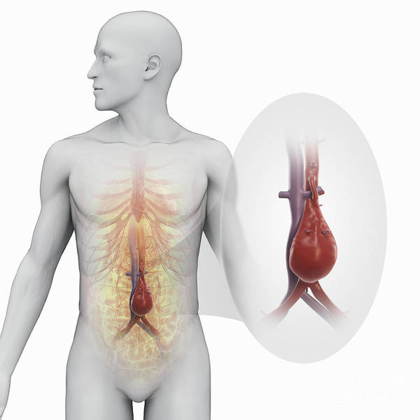 Abdominal Aortic Aneurysm Poster by Science Picture Co