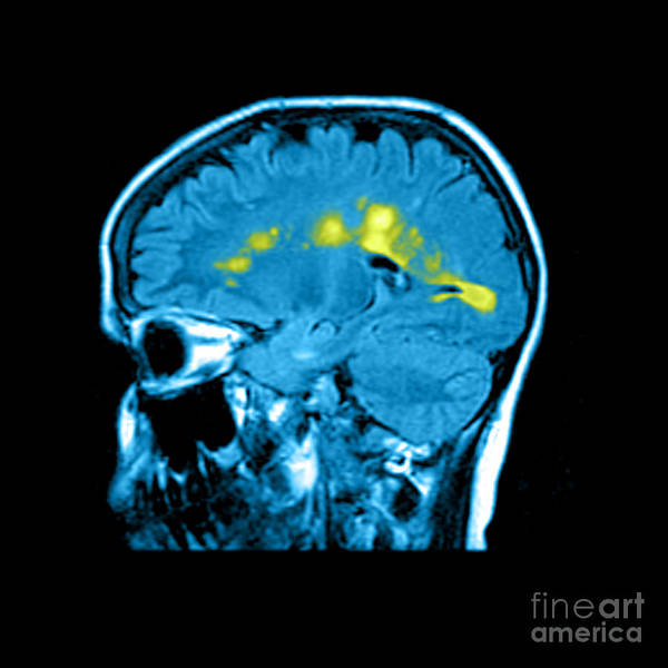 Abnormal White Matter Poster featuring the photograph Mri Of Multiple Sclerosis by Medical Body Scans