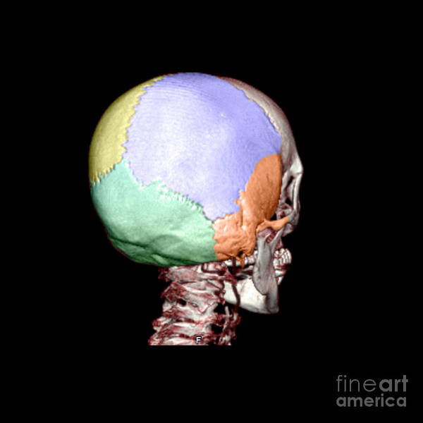 Head Poster featuring the photograph Human Skull by Medical Body Scans