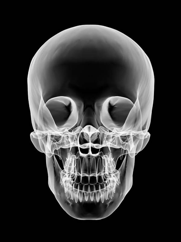 Skull Poster featuring the photograph Human Skull, X-ray Artwork by Pasieka