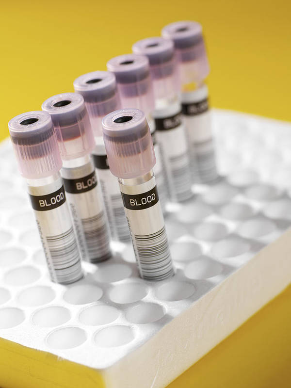 Sample Tube Poster featuring the photograph Blood Samples by Tek Image
