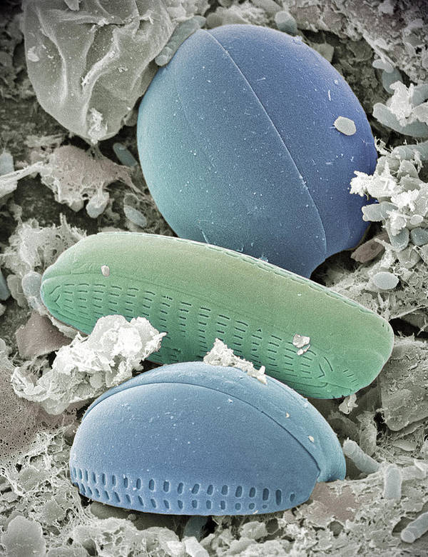 Coloured Sem Poster featuring the photograph Diatom Algae, Sem by Steve Gschmeissner