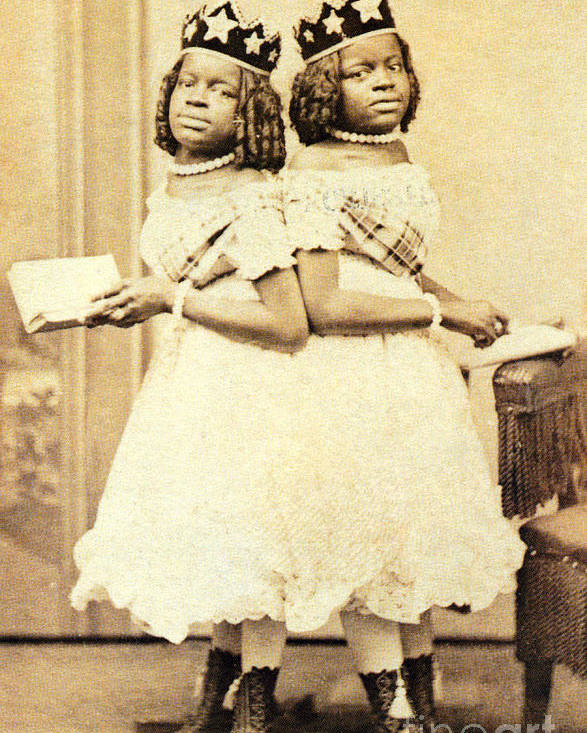 Two-headed Nightingale Poster featuring the photograph 2 Headed Girl Millie-chrissie by Photo Researchers