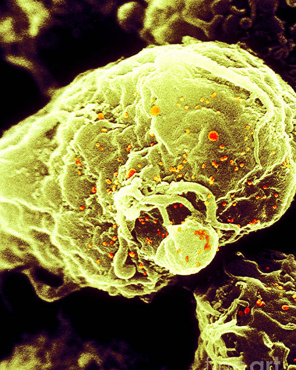 Medical Poster featuring the photograph Hiv-1 Infected T4 Lymphocyte Sem by Science Source