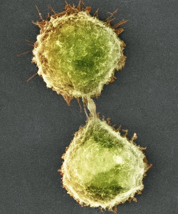 Cytokinesis Poster featuring the photograph Cell Division, Sem by