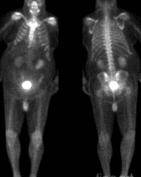 Obese Poster featuring the photograph Bone Scan by Medical Body Scans