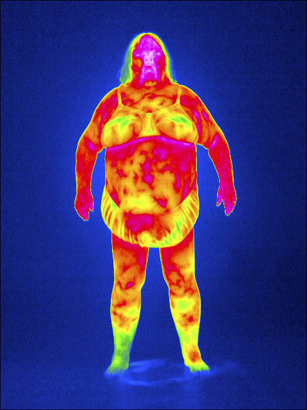 Human Poster featuring the photograph Obese Woman, Thermogram by Tony Mcconnell