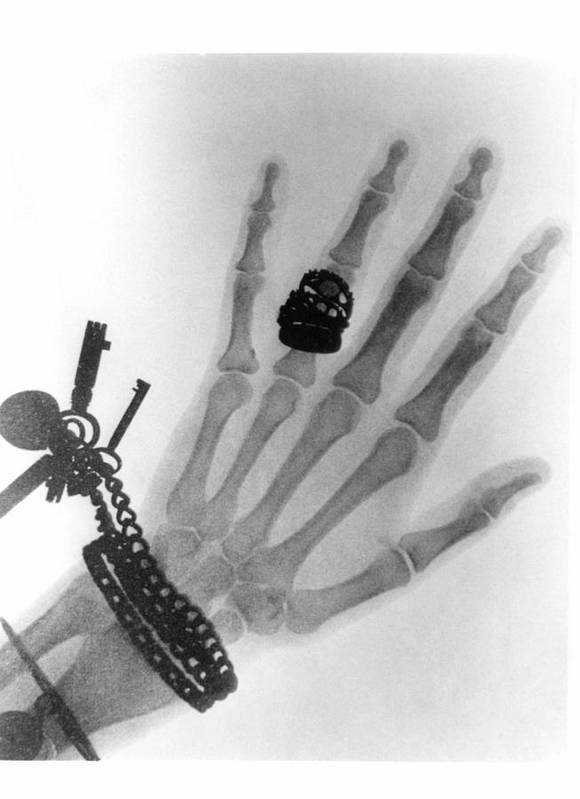 Photography Poster featuring the photograph Early X-ray Photograph Of A Hand Taken In 1896 by