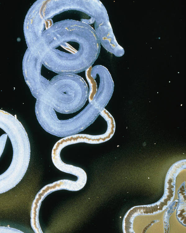 Fluke Poster featuring the photograph Lm Of Adult Intestinal Blood Flukes by Sinclair Stammers