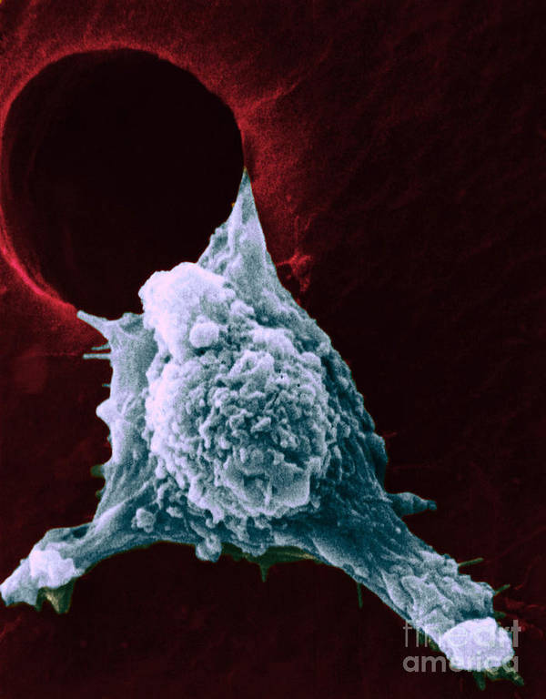 Sem Poster featuring the photograph Sem Of Metastasis by Science Source