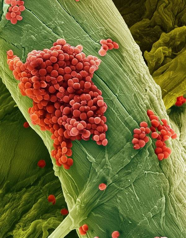 Streptococcus Pneumoniae Poster featuring the photograph Streptococcus Pneumoniae Bacteria, Sem by Steve Gschmeissner