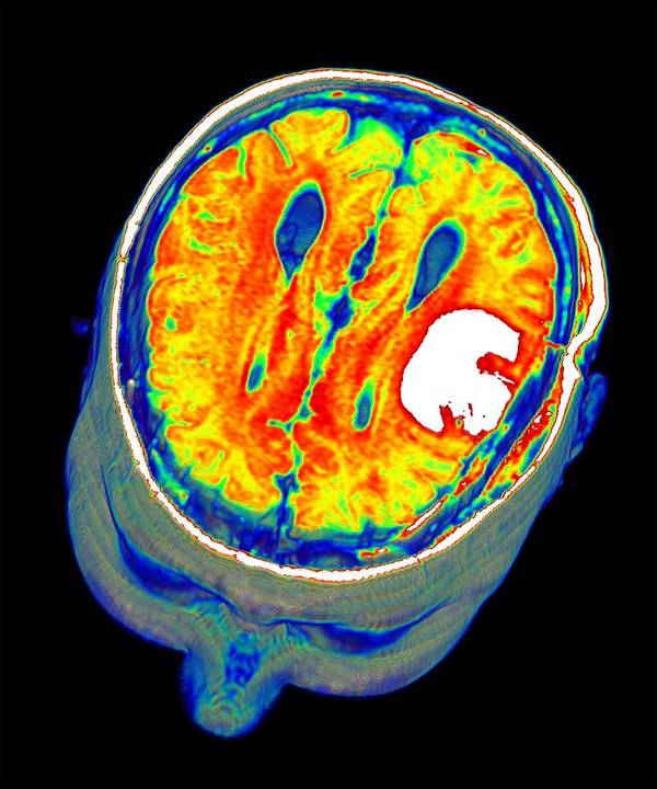 3 D Poster featuring the photograph Brain Tumour, 3d-mri Scan by Pasieka