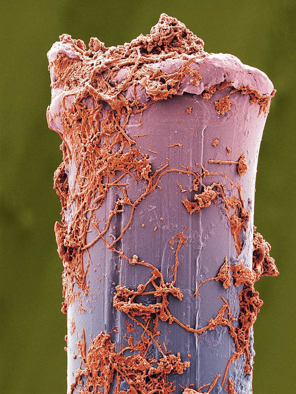 Matrix Poster featuring the photograph Used Toothbrush Bristle, Sem by Steve Gschmeissner